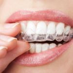 Teeth Whitening Treatment: Whiter Smile in Just One Hour